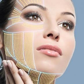 HIFU (ХАЙФУ) Високо интензивен фокусиран ултразвук за стягане на лице и тяло
